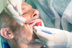 Signs and Risk Factors of Oral Cancer | Eagle Falls Dentistry