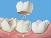 Dental Crowns in Bloomingdale